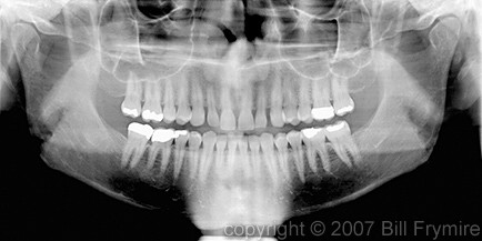 digiatl panoramic teeth x-ray model released