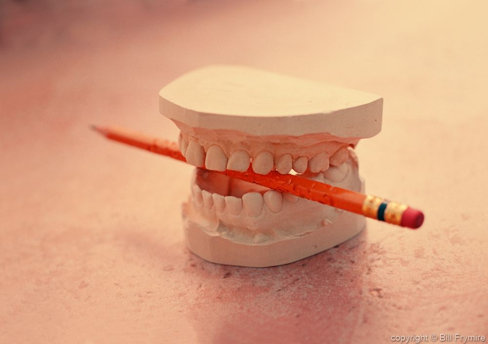 http www billfrymire com gallery mold casting teeth pencil clenched bite stressed jpg html